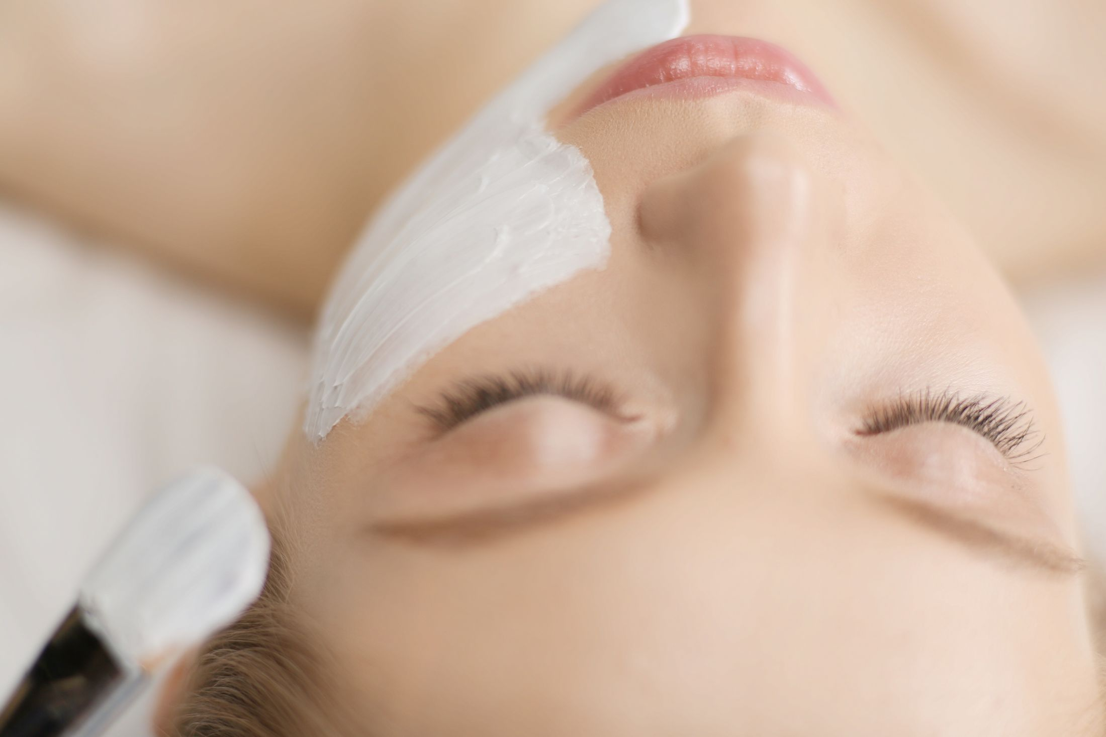 Woman receiving a chemical peel