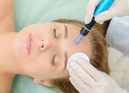 Microneedling: What Do I Need to Know?