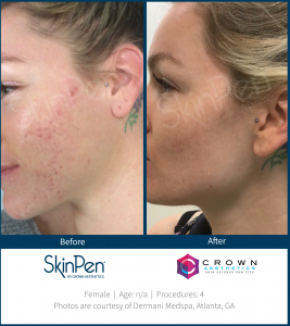 Skinpen Microneedling before and after